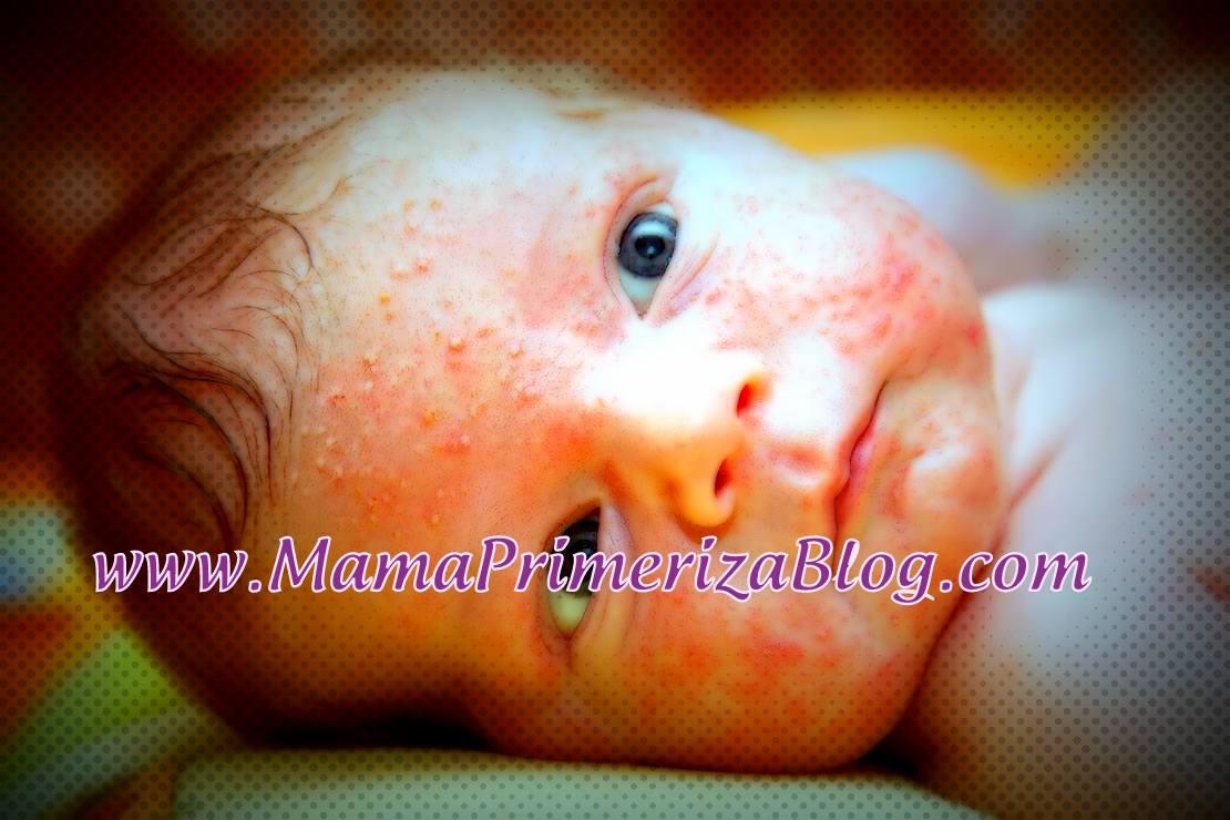 granitos blancos y rojos en la cara de mi bebe